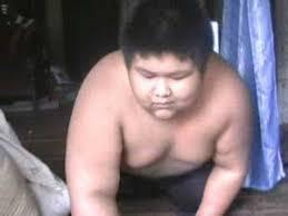 Supardi, bocah raksasa asal Sukabumi, kini dirawat di R.S Hasan Sadikin Bandung