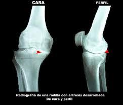 Radiografia gonartrosis