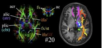 Brain Mri Anatomy F M Kirby Research Center Software