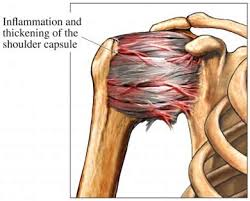 Article Review:  Are nerve cells involved in the pathogenesis of frozen shoulder?