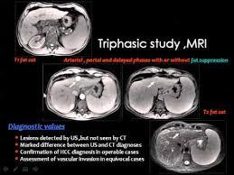 Brain Mri Anatomy Normal Ct U0026 Mri Anatomy Of The Abdomen Dr Mamdouh Mahfouz Youtube