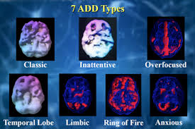 ADD   ADHD   Amen Clinics Amen Clinics