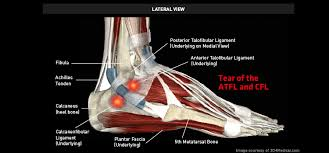 Anterior Talofibular Ligament Repair Tear Of The Atfl And Cfl U2013 Thermoskin U2013 Supports And Braces For
