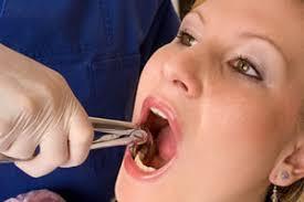 Oral surgery Harrisonburg VA