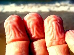 Perquè s'arruga la pell dels dits quan estan a l'aigua?