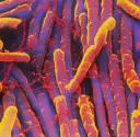 Clostridium difficile | C diff Microbiology