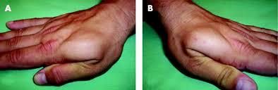Where is the 'mouse' of the hand hiding...??? Images?q=tbn:ANd9GcRBG_8ombNVCyLdQFSgIz3QOIi6sTiOfGI_YytxJOEH_S1Xn9xb