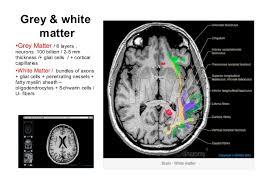 Brain Mri Anatomy Brain Anatomy In Concerin Of Diagnostic Imaging