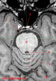 Brain Mri Anatomy Pons Anatomy With Mri