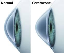 Ceratocone, ectasia, ectasia corneal, ectasia corneana, tratamento para ceratocone, cura para ceratocone, ceratocone avançado, ceratocone inicial, suspeita de ceratocone, lente para ceratocone, especialista em ceratocone, especialista ceratocone porto alegre, clinica especializada em ceratocone, oftalmologista ceratocone, oftalmologista para ceratocone, especializado em ceratocone, cone, córnea fina, cornea fina, córnea em forma de cone, cornea em forma de cone, ceratocone tratamento, ceratocone cirurgia, crosslink, cross link, crosslinking, cross linking, anel de ferrara, transplante de córnea, transplante de cornea