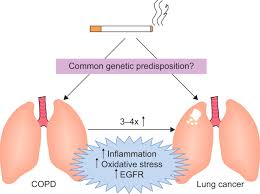 systemic manifestations and comorbidities of copd european