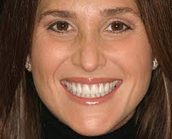 Tips For A Dazzling Smile by Smile Design Enhanced With Porcelain Veneers Smile Analysis
