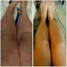 Psoriatic Arthritis And Hair Loss Psoriasis Before And After Treatment Skin And Auto Immune