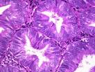 Slide: Complex <b>Endometrial Hyperplasia</b> with Atypia | Webpathology.