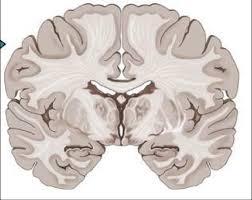 Sheep Brain Anatomy Game Imagequiz Coronal Section Of The Brain