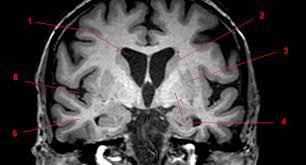 Brain Mri Anatomy Basal Ganglia Overview