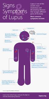 Psoriatic Arthritis And Hair Loss Signs And Symptoms Of Lupus Lfa Lupus ƹӝʒ Pinterest Best