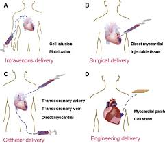 Advances in Regenerative Cardiac Therapy