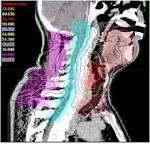 <b>Cancer</b> of the <b>hypopharynx</b> is