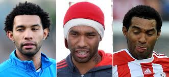 Footballers that have had cosmetic surgeries