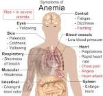 may appear in <b>anemia</b> [11]