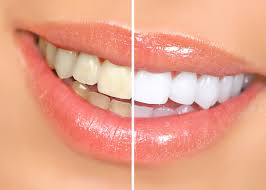 teeth whitening in batavia can get you the beautful white smile