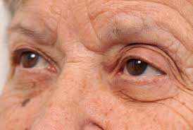 Your Eyes May Tell The Tale Of <b>Alzheimer&#39;s</b> Onset