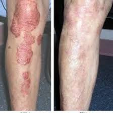 Psoriatic Arthritis And Hair Loss Psoriasis Epiderma Epiderma Cosmetology And Leaser Clinic