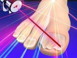does laser treatment for nail fungus infection 2017 quora