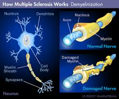 Figure 3. Multiple Sclerosis is characterized by demyelination.
