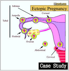 Search   Pri Med case study on hypertension during pregnancy