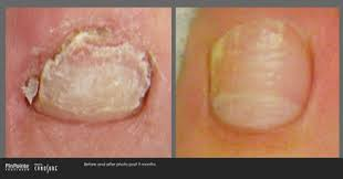 foot u0026 ankle centers of frisco u0026 plano frisco tx podiatrist