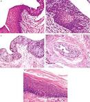 Modern Pathology - Figure 1 for article: Epithelial abnormalities
