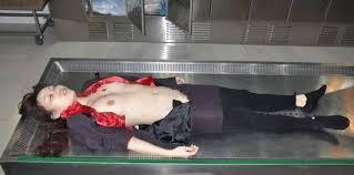 死体解剖エロ|画像をクリックで動画が表示されます。