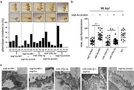 podocytes regulate the glomerular basement membrane protein