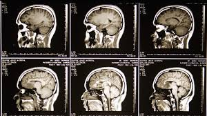 Brain Mri Anatomy Mri Grey U0027s Anatomy Universe Wiki Fandom Powered By Wikia