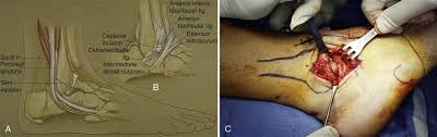 Anterior Talofibular Ligament Repair Lateral Ligament Repair Of The Ankle Clinical Gate