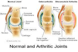 °l||l°الالتهاب المفصلي العظمي°l||l°