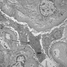 cureus concomitant granulomatosis with polyangiitis and c3