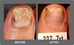 toenail fungus maine laser skin care