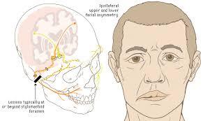 Bell�s palsy ����� Facial palsy