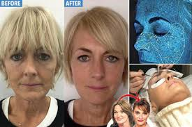 Hair Color To Look Younger Sun Columnist Jane Moore Splashes Out 3 800 On Facelift Following