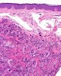 <b>Juvenile xanthogranuloma</b>