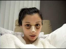 چکار کنیم که بعد از جراحی بینی دچار کبودی نشویم