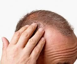 Saç dökülmesine karşı bitkisel çözüm
