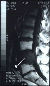 X-ray of spinal tumor
