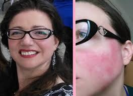 how i cover a rosacea flare up with makeup talkhealth blog
