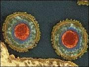 BBC Brasil - Notícias - Circuncisão previne herpes e HPV, diz estudo