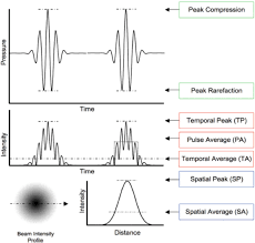 Ultrasonic neuromodulation   IOPscience Standard image