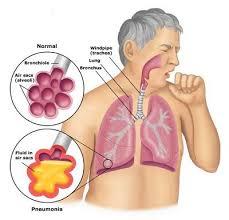Radang Paru-Paru dan Bronkhitis
